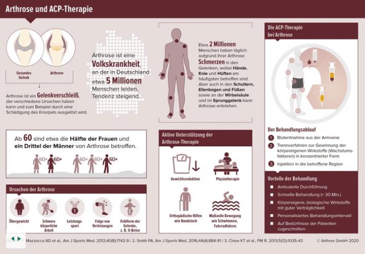 Arthrose ohne Schmerzmittel behandeln